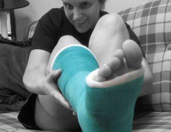 Preparing for Orthopedic Surgery