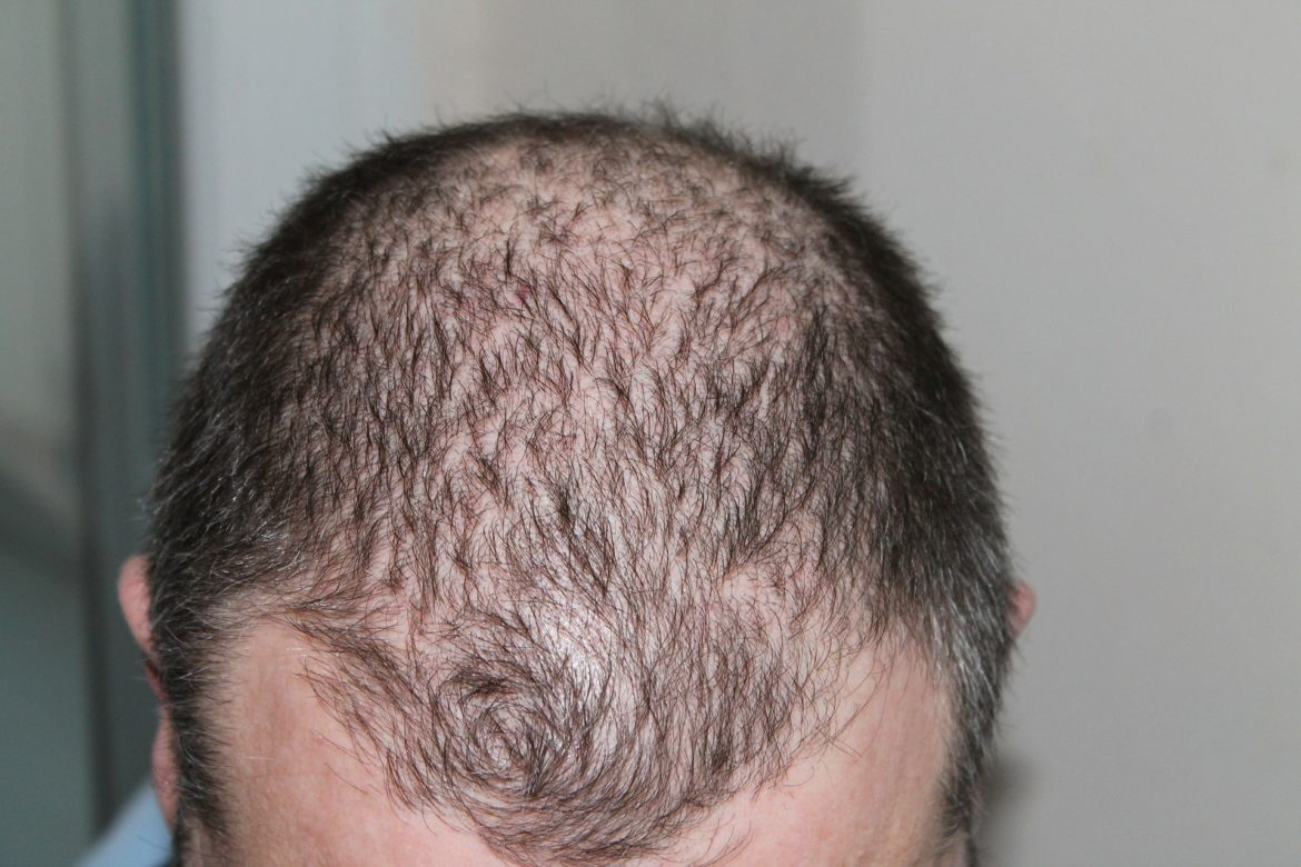 Thinning On Top? These Are The Most Popular Methods Of Hair Transplantation